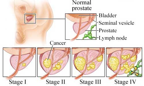 Facts About Prostate Cance